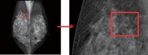 乳がん(上−マンモグラフィ)